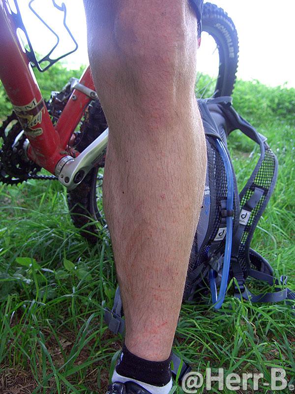 geschundenes Bein